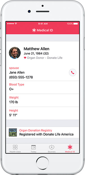 ios-10-donor